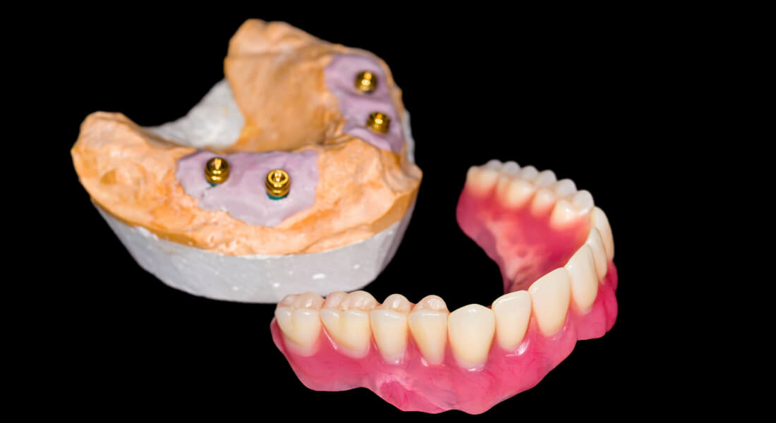 implant supported denture on stone mockup
